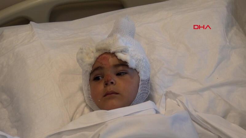 Tandıra düşen 2 yaşındaki Eylül yaralandı