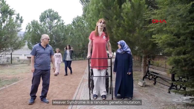 2 metre 15 santimetre boyundaki Rümeysa, 'dünyanın en uzun kadını' olarak Guinness'te