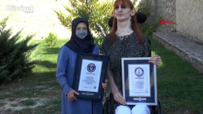 Dünyanın en uzun kadını Rumeysa: Farklı olmak kötü bir şey değil