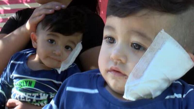 Antalya'da pitbull dehşeti! Bebeği ve babasını yaraladı